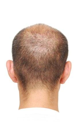 Calvicie y caída del cabello: remedios, jugos y tips infalibles