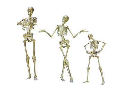 Osteoartritis: dieta, guia nutricional y hierbas