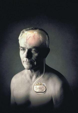 深部腦刺激術機器植入位置透視圖