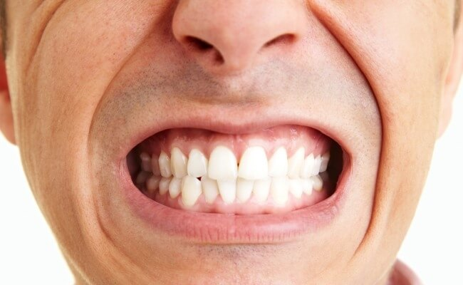 口腔長白斑以為火氣大 結果是罹口腔癌二期