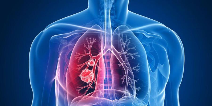口服化療藥迎戰肺癌 延壽兼顧生活品質