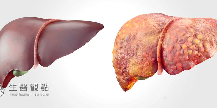 台灣特有「紅寶石」保肝成分揭祕!防範肝病變肝癌