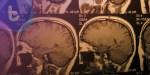 抗類風濕性關節炎藥物新用途 可修復中風後大腦損傷