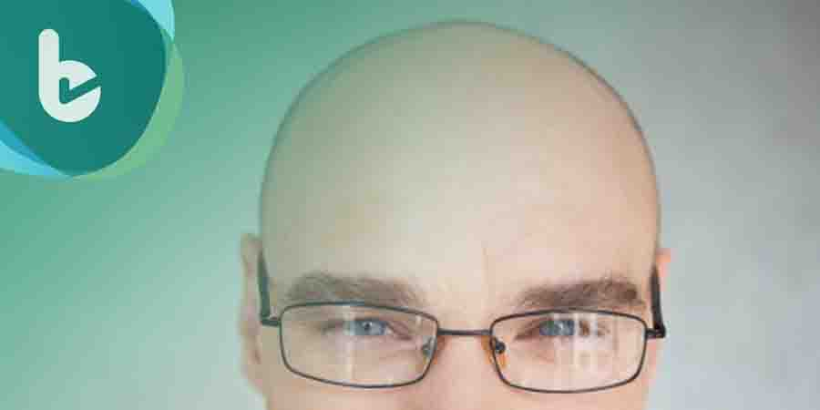 半數男性擔心禿頭 植髮患者激增二成!