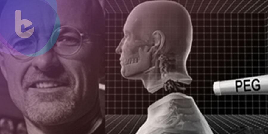 全球首例換頭手術已初步獲得成功!
