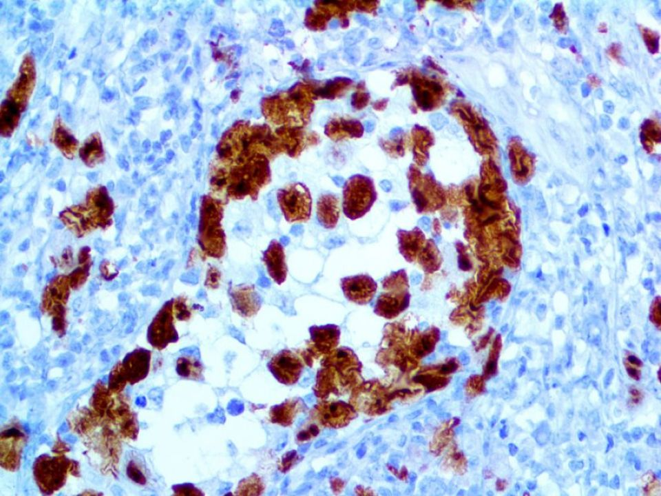 ALK-1-RMab-40X-1GFA26-1-1 Large Anaplastic Large Cell Lymphoma