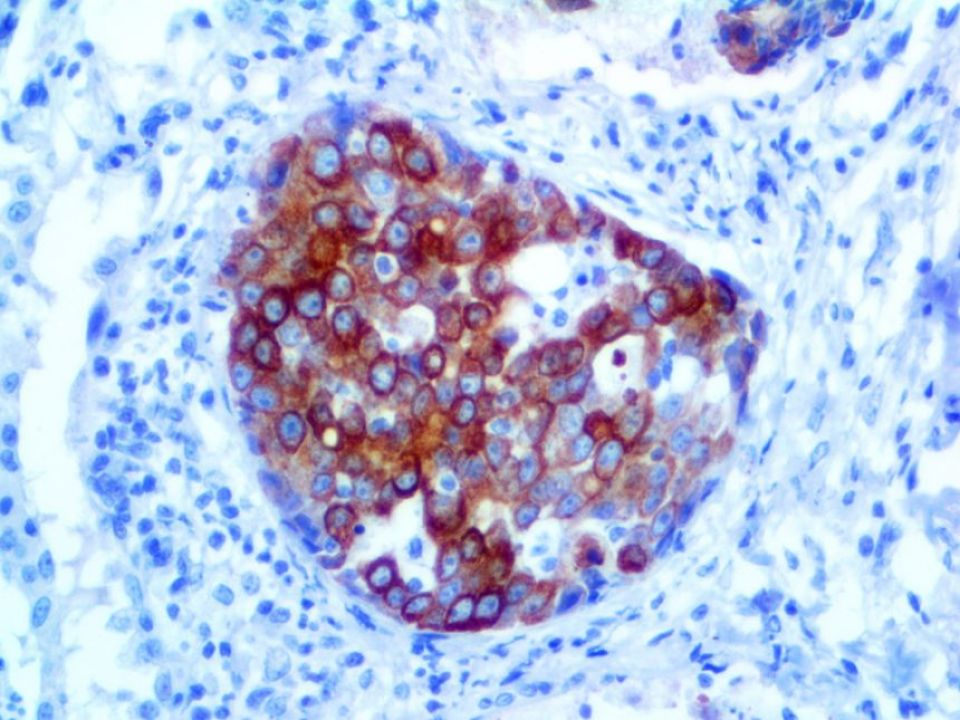 IHC of Cytokeratin 20 Rabbit Monoclonal on FFPE tissue Colon Cancer metastasis to Lung Tissue (DAB)