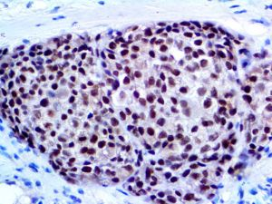 IHC of Cytokeratin SOX-10 on an FFPE Melanoma Tissue