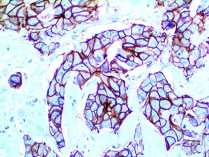 IHC of HER-2 neu on an FFPE Breast Carcinoma Tissue