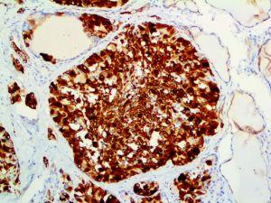 CK19-20X-1WFA21-19-1 Thyroid Carcinoma
