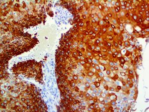 IHC of CK17 on an FFPE Cervical Carcinoma Tissue
