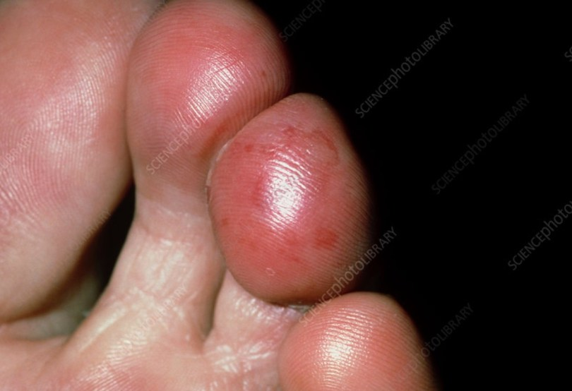 Chilblains in feet