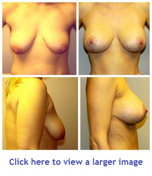 Breast Lift at Birmingham Cosmetic Surgery