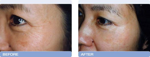 before_after_CoolTouch_CT3Plus_Laser_wrinkle_reduction_5