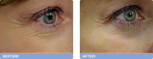 before_after_CoolTouch_CT3Plus_Laser_wrinkle_reduction_1 (1)