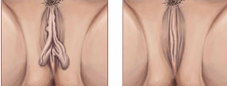 newest ca919 bbc3e Labiaplasty   Birmingham Cosmetic Surgery - Detroit - Dr. Rifai