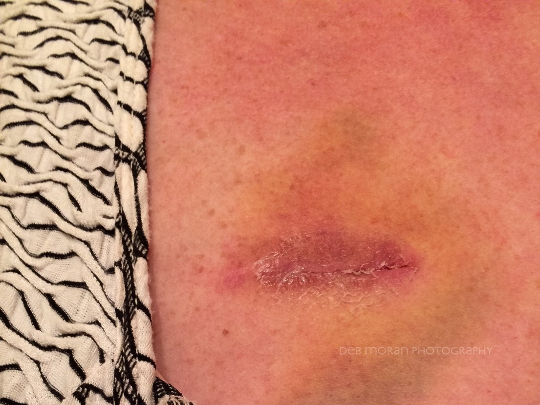 My deportation incision is healing quite well. A bit of bruising, glue sloughing off. Looks as well as I could expect.