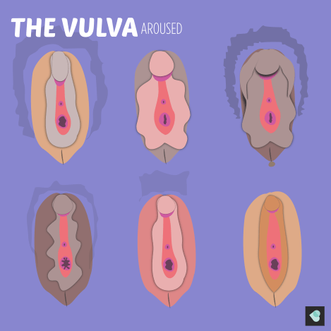Image of the vulva when aroused.