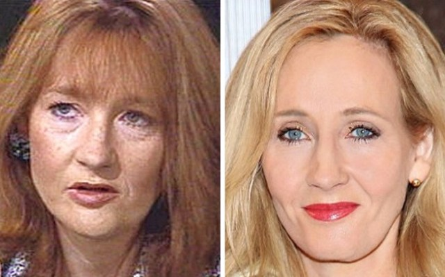 JK Rowling Plastic Surgery Before and After - Top