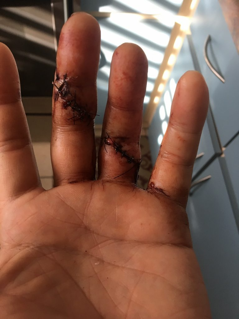 fingers smashed during hurricane maria experience puerto rico stitched up