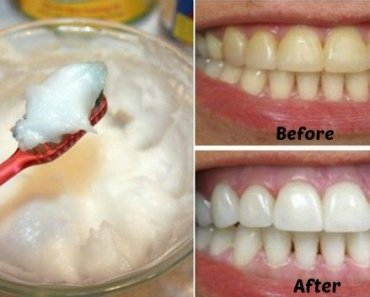 Homemade Toothpaste with Coconut Oil - Health benefits