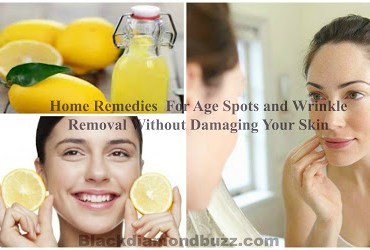 Home Remedies For Age Spots and Wrinkles Removal