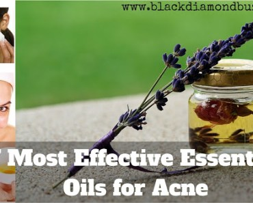 Most Effective Essential Oils for Acne or Pimple