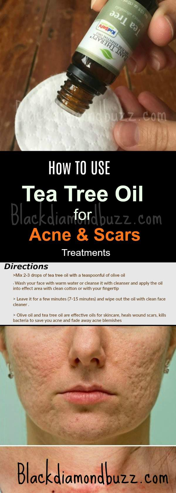 How to use Tea Tree Oil for Acne and Scars Treatments