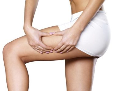 Weight Loss9 Successful Tips on How to Get Rid of Thigh Fat Fast