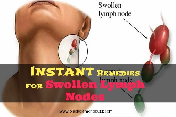 How To Cure Neck Cancer Naturally