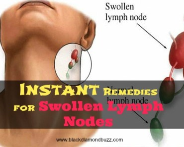 Instant Remedies for Swollen Lymph Nodes