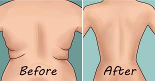 7 Best Exercises to Get Rid Of Back Fat At Home