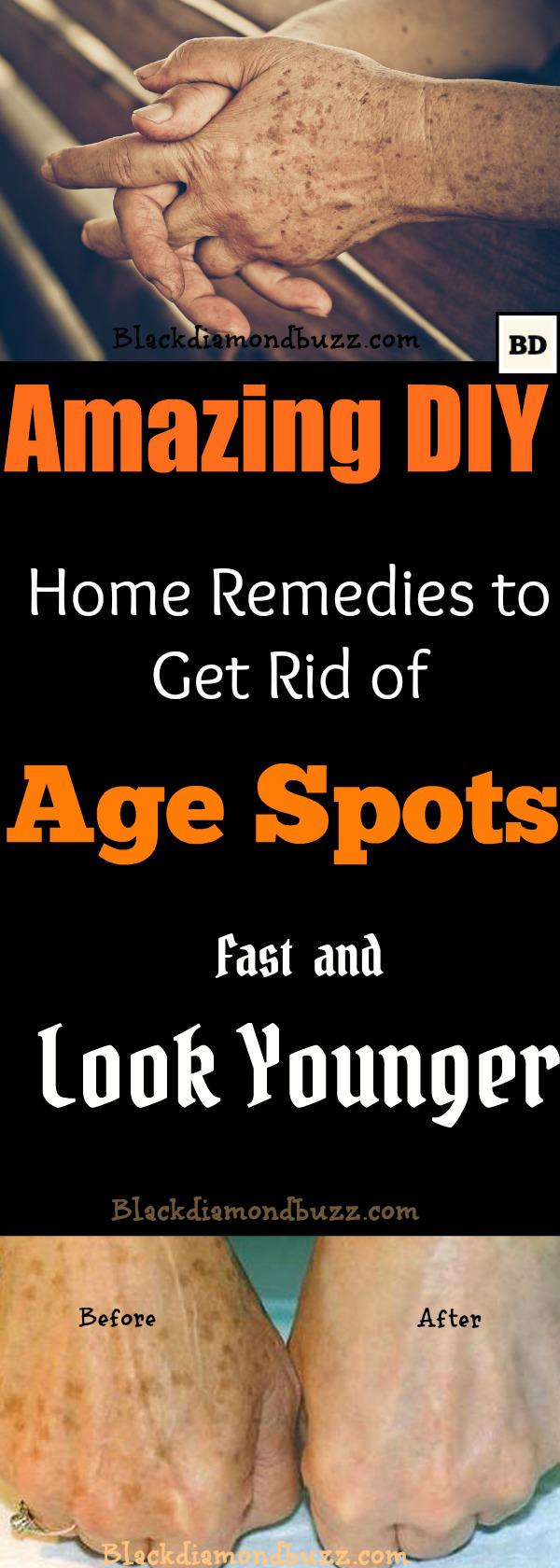 How to Get Rid of Age Spots on Face   7 Home Remedies That Work Fast