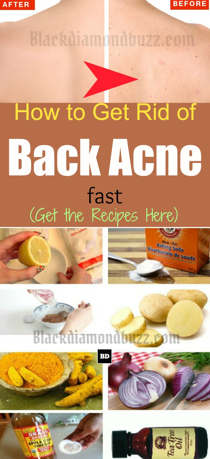 How To Get Rid Of Back Acne Fast 7 Best Home Remedies For Backne Blackdiamondbuzz