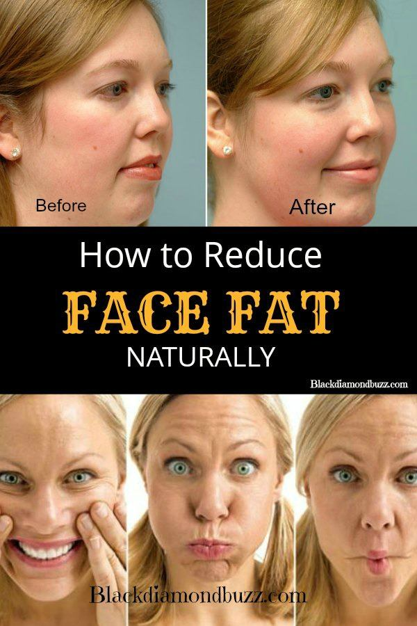 How to reduce lower lip fat naturally
