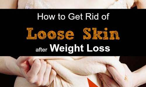 How to Get Rid of Loose Skin after Weight Loss Naturally and Permanently