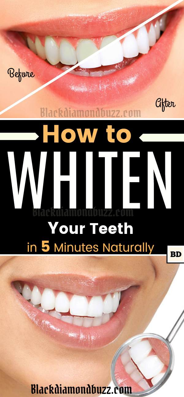How to Get Rid of Yellow Teeth Fast! 9 Best Home Remedies for Whiter Teeth