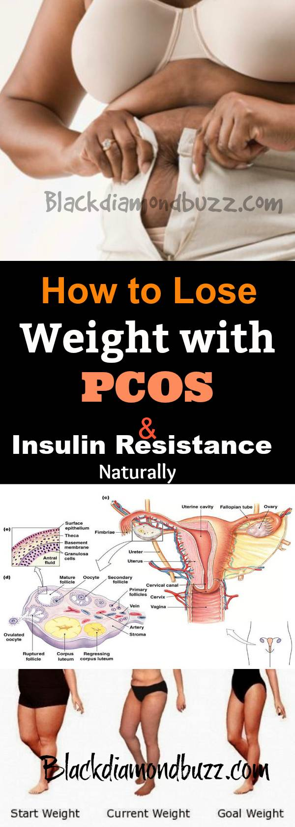 How to lose weight with pcos and insulin resistance naturally ccuart Gallery