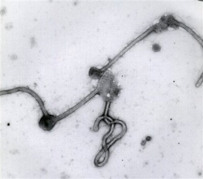 This undated photo made available by the Antwerp Institute of Tropical Medicine in Antwerp, Belgium, shows the Ebola virus viewed through an electron microscope. The World Health Organization on Friday, Aug. 8, 2014 declared the Ebola outbreak in West Africa to be an international public health emergency that requires an extraordinary response to stop its spread. (AP Photo/Antwerp Institute of Tropical Medicine)