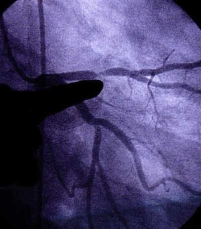 In this Monday, June 24, 2002 file photo, a doctor points to an image of a coronary artery with 80-90 percent blockage in St. Louis. A study published by the New England Journal of Medicine on Wednesday, April 8, 2015 finds genes that govern height also seem to affect cholesterol, especially in men. (AP Photo/Tom Gannam)