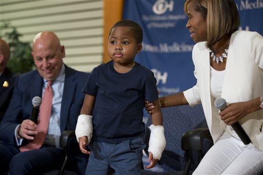 Double Hand Transplant-Child