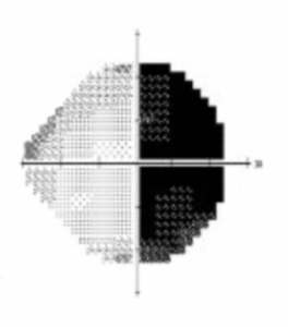 Field of Vision print out results 2011. Shows a half and half circle with the right half all black and the left half mainly white