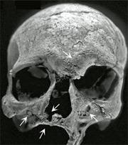 I segni della lebbra sullo scheletro ritrovato in India (credit: Gwen Robbins et al., PLoS ONE)
