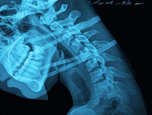 copertina del disco di Dr. Wesh: Pazienti