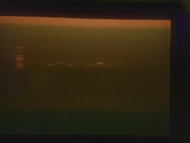 The DNA gel imager exposes elements of DNA suspended in agarose gel