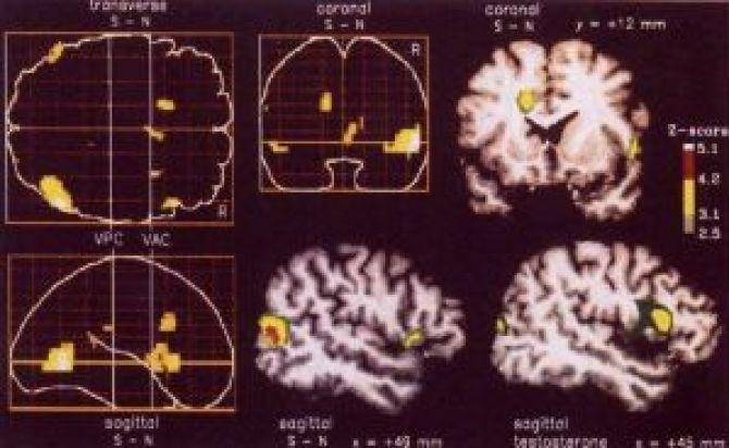 Les régions cérébrales activées par l'excitation sexuelle chez l'homme