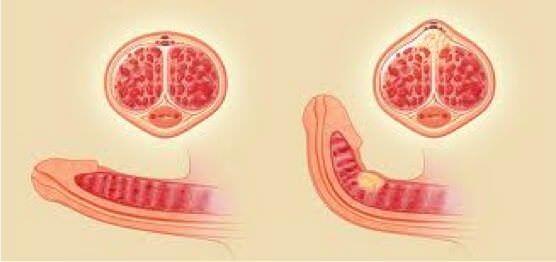 Mécanisme physiopathologique de la Maladie de Lapeyronie avec formation d'une plaque scléreuse