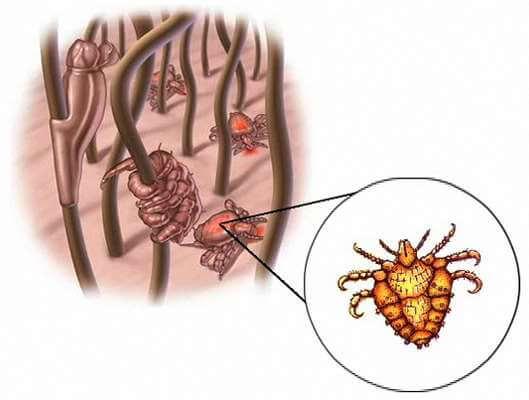 Morpions/Pou du pubis (pthirus inguinalis)