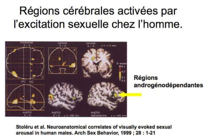 regions cerebrales activees par l'excitation sexuelle chez l'homme