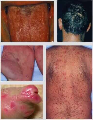Tableau clinique de la syphilis secondaire
